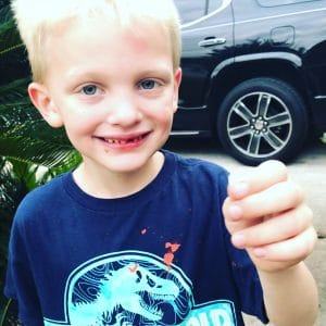 Lost Top Front Tooth